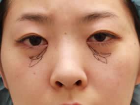 3.眼窩脂肪注入のデザイン(メイクなし)