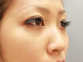 6.経結膜脱脂 手術1ヶ月後(メイクあり)