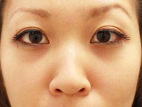 7.経結膜脱脂 手術2ヶ月後(メイクあり)