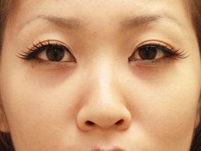 5.経結膜脱脂 手術2週間後(メイクあり)