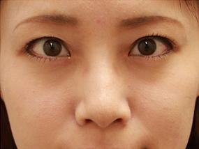 8.経結膜脱脂 手術3ヶ月後(メイクあり)