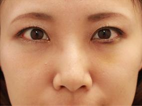 3.経結膜脱脂 手術3日後(メイクあり)