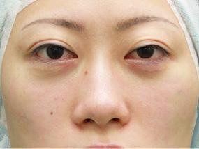 3.手術中 経結膜脱脂法のみ終了後(メイクなし)