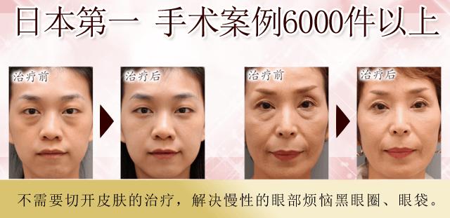 目の下のくま・たるみ/独自の技術で、6000件を超える治療実績