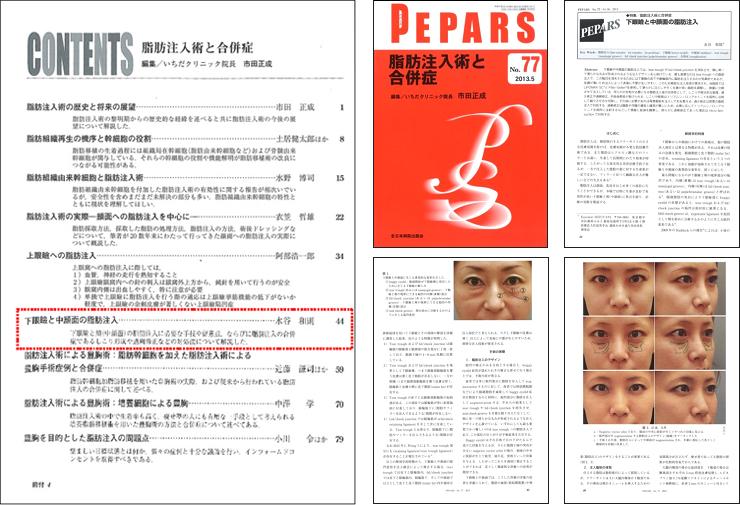 目の下のくま・たるみ治療に関する医学論文掲載1