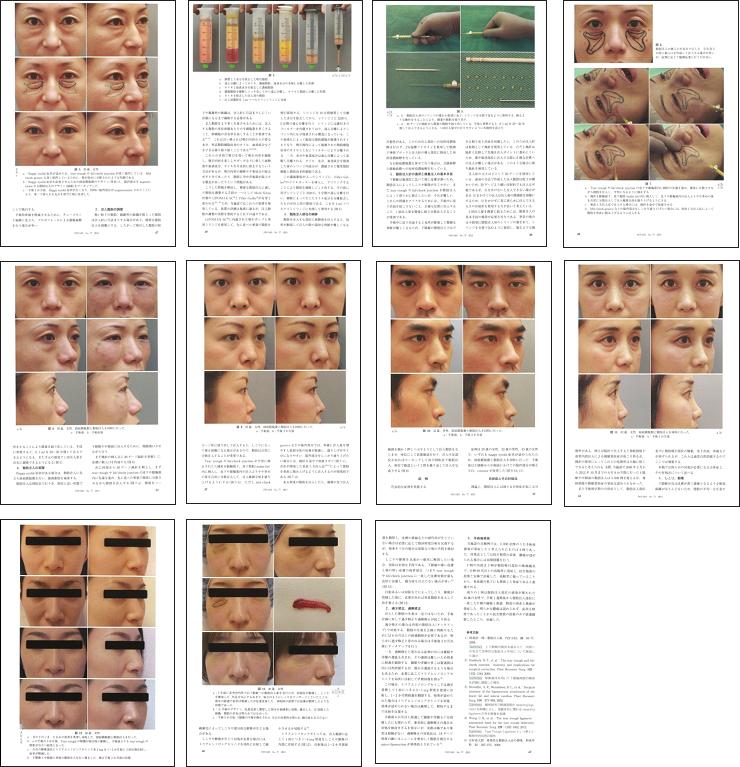 目の下のくま・たるみ治療に関する医学論文掲載2