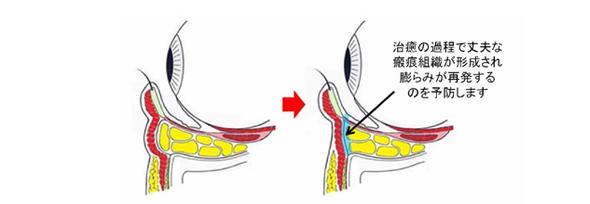 治癒の過程で丈夫な瘢痕(はんこん)組織が形成されます
