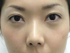 4.手術1週間後(メイクなし)