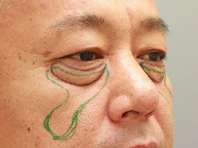 2.手術デザイン (黒線:経結膜脱脂、緑線:脂肪注入)
