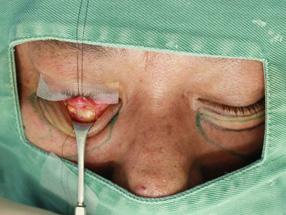 3.手術中 経結膜脱脂の様子