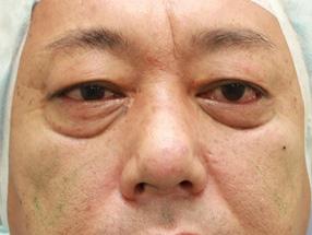 4.手術中 経結膜脱脂直後の状態