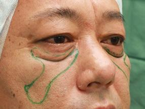5.手術中 経結膜脱脂後の脂肪注入のデザイン