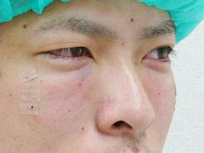 2.手術直後