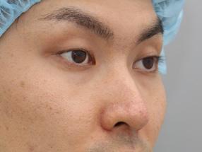 1.手術前