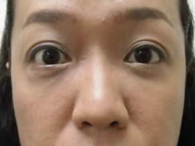 5.手術2週間後(メイクあり)