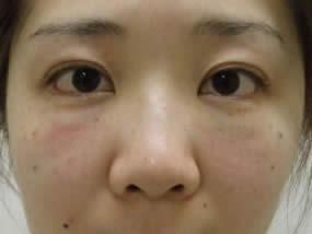 2.手術直後(メイクなし)