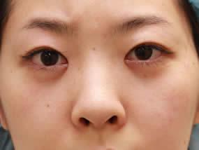 2.経結膜脱脂直後(メイクなし)