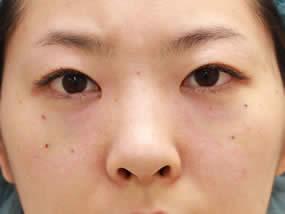 4.眼窩脂肪注入直後(脱脂リポ法手術直後、メイクなし)