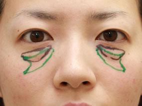 2.手術のデザイン(黒:脱脂、緑:脂肪注入)(メイクなし)