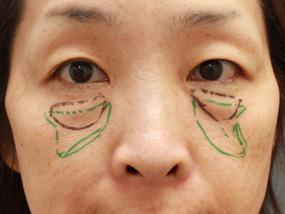 2.手術デザイン