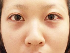 2.経結膜脱脂 手術直後(メイクなし)