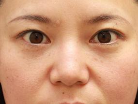 6.経結膜脱脂 手術2ヶ月後(メイクあり)
