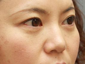 7.経結膜脱脂 手術3ヶ月後(メイクあり)