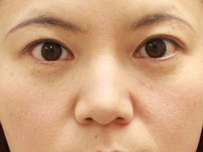 8.経結膜脱脂 手術4ヶ月後(メイクあり)