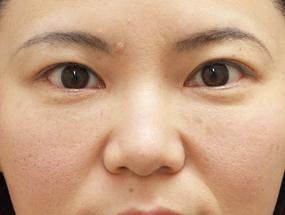 15.脱脂後に脂肪注入 手術2週間後(メイクあり)