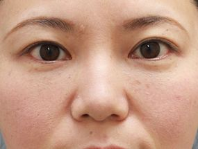 17.脱脂後に脂肪注入 手術2ヶ月後(メイクあり)