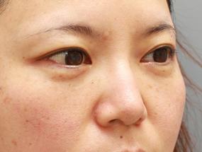 4.経結膜脱脂 手術1週間後(メイクあり)