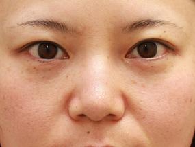 5.経結膜脱脂 手術1ヶ月後(メイクあり)